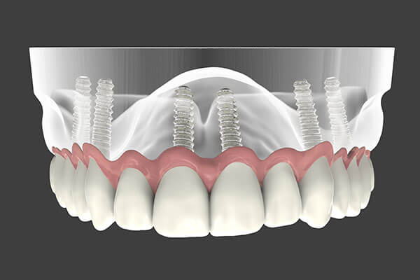 Implant Supported Dentures in Port Washington