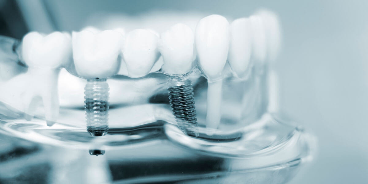Dental Implants in Port Washington