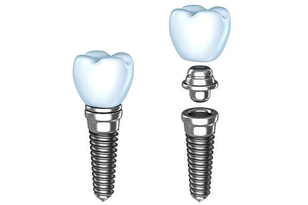 Single Dental Implants in Port Washington