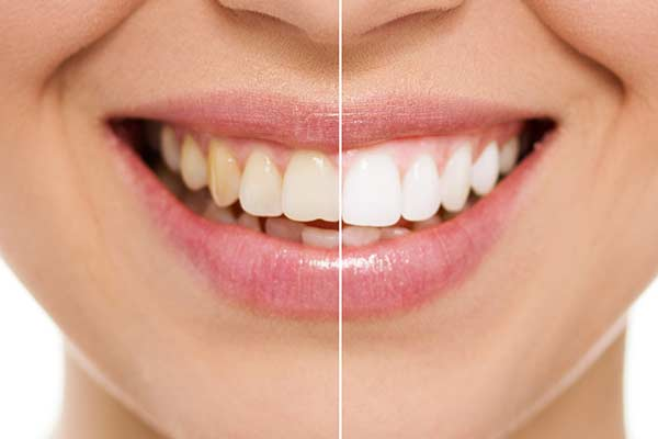 Teeth Whitening in Port Washington